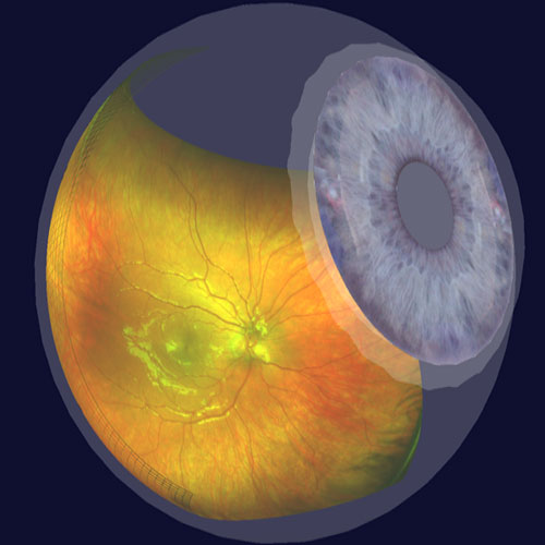 Ultra-Widefield Retinal Imaging